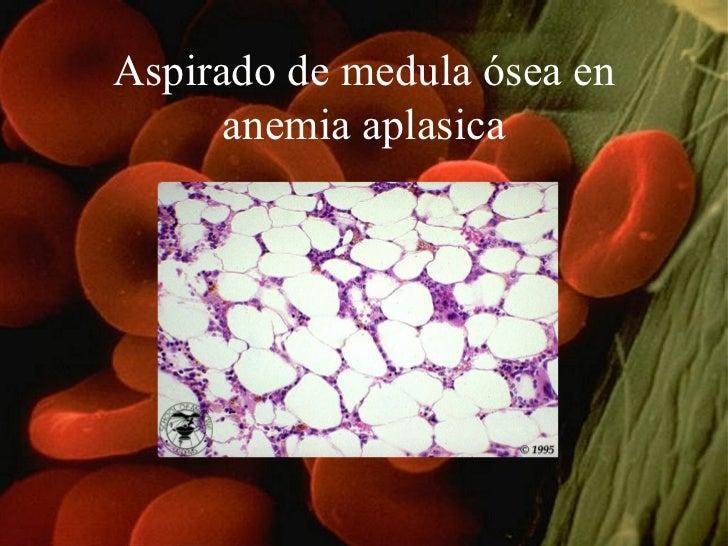 Aspirado de medula ósea en anemia aplasica
