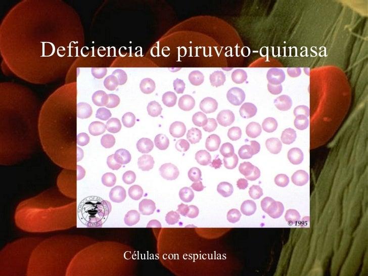 Deficiencia de piruvato-quinasa Células con espiculas