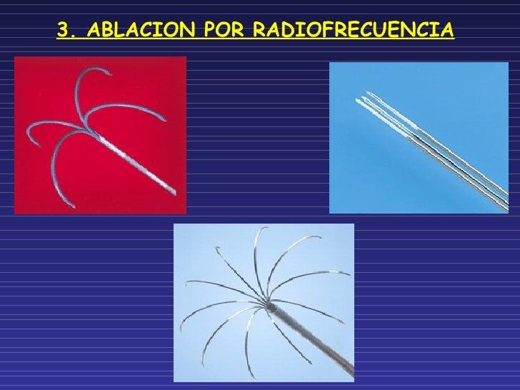 3. ABLACION POR RADIOFRECUENCIA