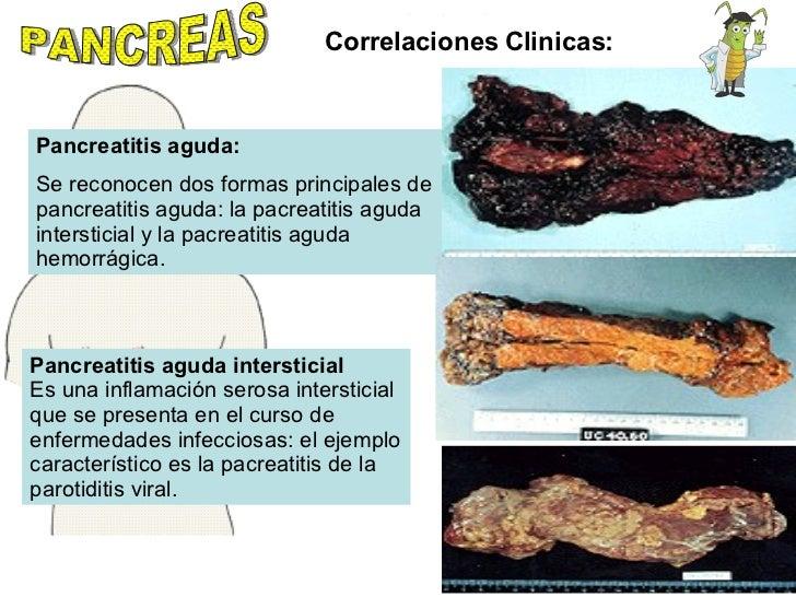 PANCREAS Correlaciones Clinicas: Pancreatitis aguda: Se reconocen dos formas principales de pancreatitis aguda: la pacreat...