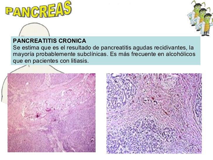 PANCREAS PANCREATITIS CRONICA Se estima que es el resultado de pancreatitis agudas recidivantes, la mayoría probablemente ...