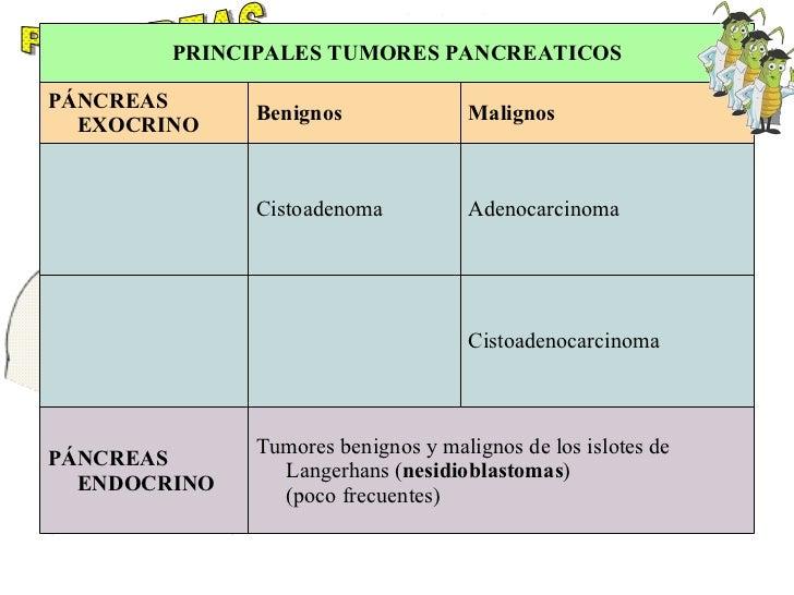 PANCREAS Tumores benignos y malignos de los islotes de Langerhans ( nesidioblastomas ) (poco frecuentes)  PÁNCREAS ENDOCRI...