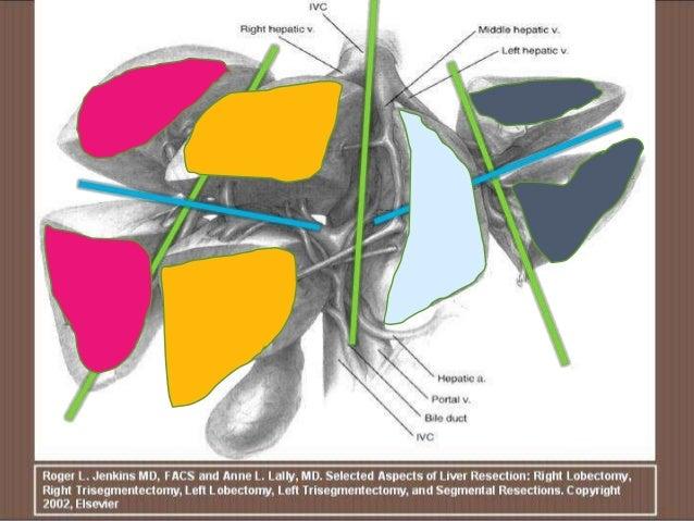 Anatomia Radiologica del Higado