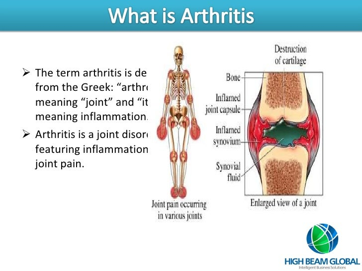 Arthritis Slide 2