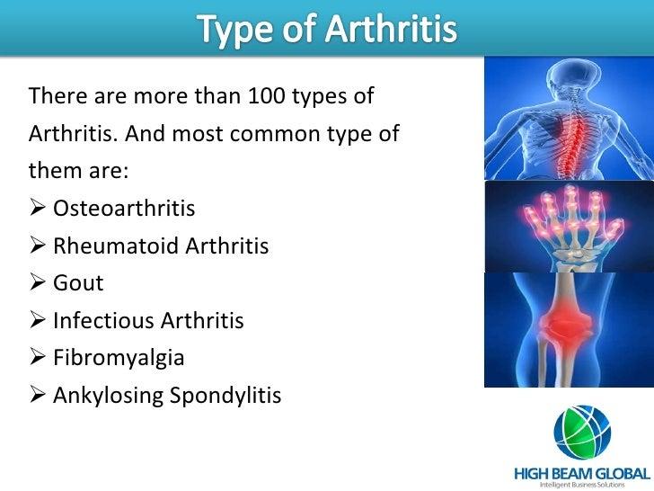 Arthritis Slide 3