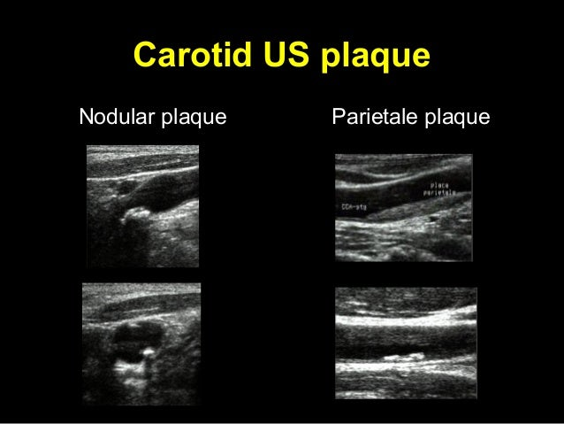 Doppler study carotid arteries