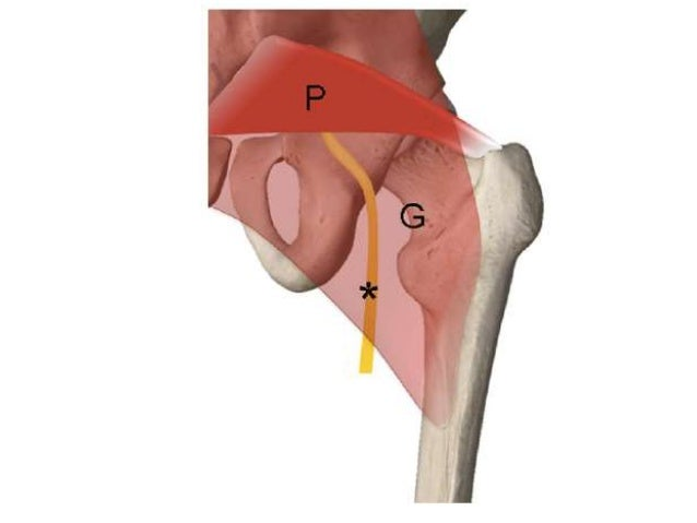 Ultrasonography of Hip joint