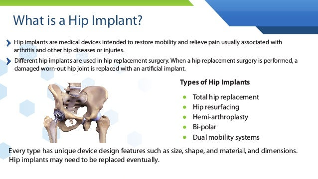 An Insider Look: Hip Implant Litigation