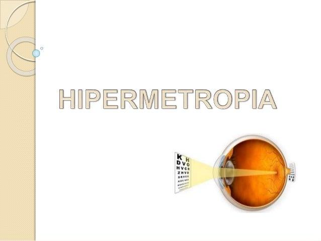 A Hipermetropia é uma anomalia refracional. Ocorre quando os raios luminosos são intercetados pela retina, antes de se for...
