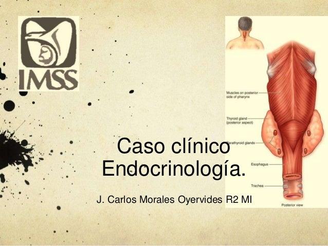 Caso clínico Endocrinología. J. Carlos Morales Oyervides R2 MI