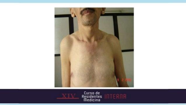 NEJM 2000. Parathyroid disorders