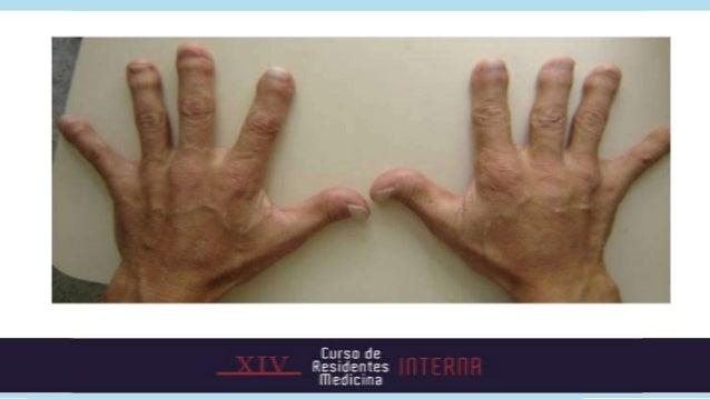 Vía RANK-RANKL-OPG            Roman-Gonzalez A et al. Pharmacotherapy of bone loss focus on denosumab. Clinical Therapeuti...