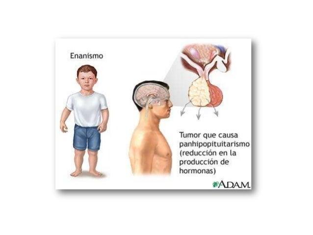 Síntomas• Las manifestaciones clínicas varían en función de  la causa y de la edad en que se presenten las  deficiencias d...