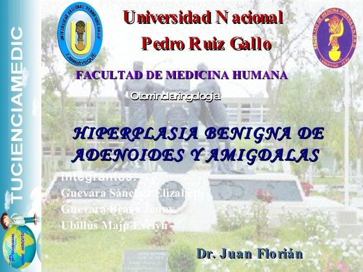 Universidad Nacional  Pedro Ruiz Gallo FACULTAD DE MEDICINA HUMANA Otorrinolaringología  HIPERPLASIA BENIGNA DE ADENOIDES ...