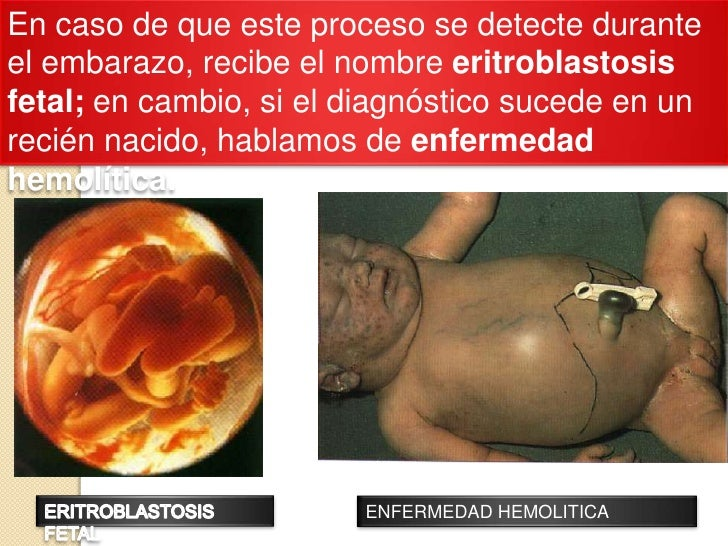 En caso de que este proceso se detecte durante el embarazo, recibe el nombre eritroblastosis fetal; en cambio, si el diagn...