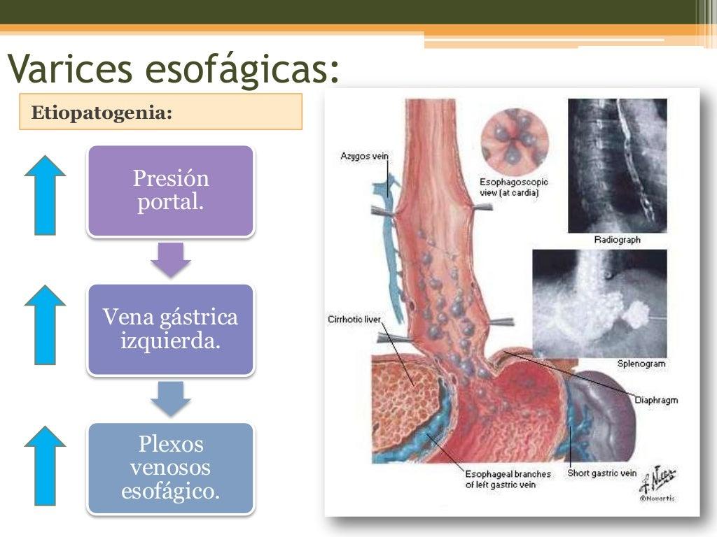 Ocho temas más típicos con Hipertensión definicion