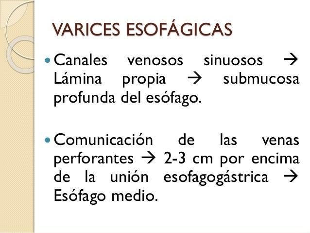 Los geles eficaces del ungüento de varikoza