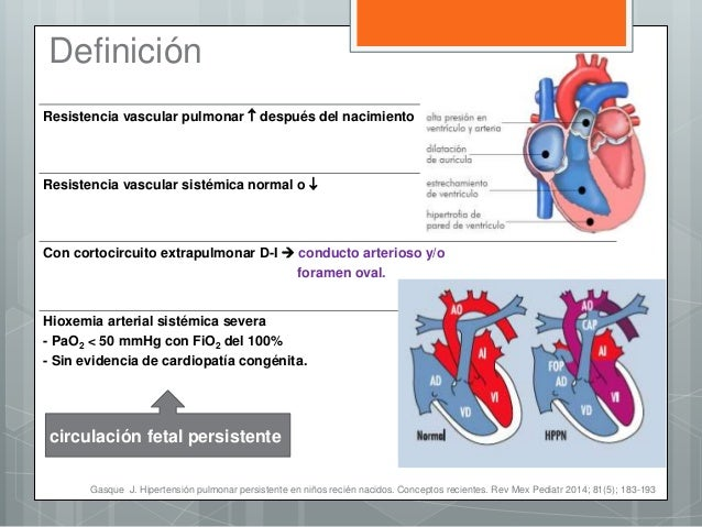 HIPERTENSION PULMONAR EN RECIEN NACIDOS PDF