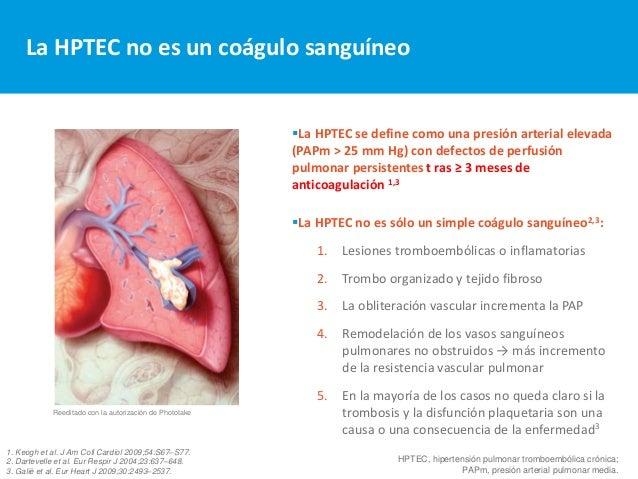 Hipertension pulmonar tromboembolica cronica