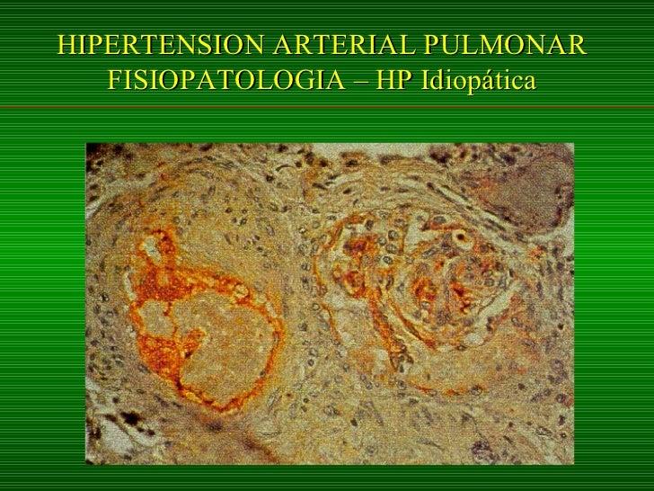 Hipertension Arterial Pulmonar