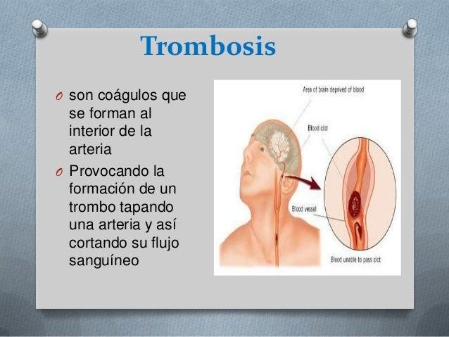 Si es posible hacer las operaciones a la tromboflebitis