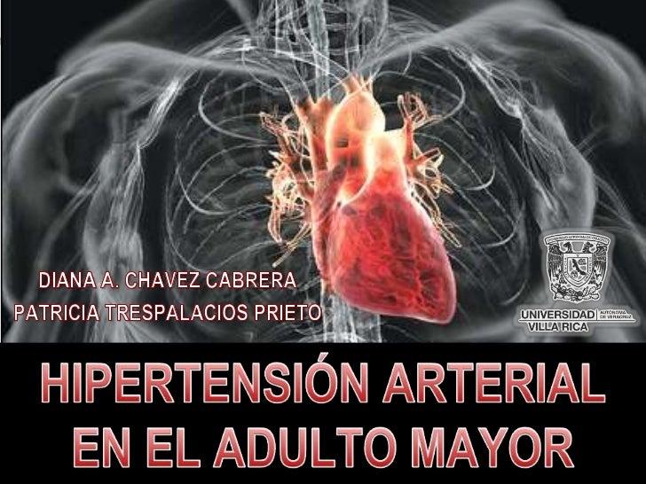 DIANA A. CHAVEZ CABRERA<br />PATRICIA TRESPALACIOS PRIETO<br />HIPERTENSIÓN ARTERIAL EN EL ADULTO MAYOR<br />
