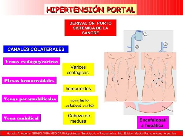 El riesgo a la baja de Hipertensión arterial de que nadie está hablando