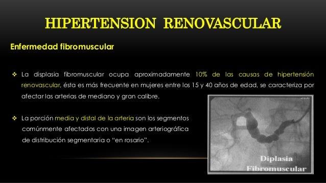 NEFROLOGIA CLINICA: Hipertension renovascular