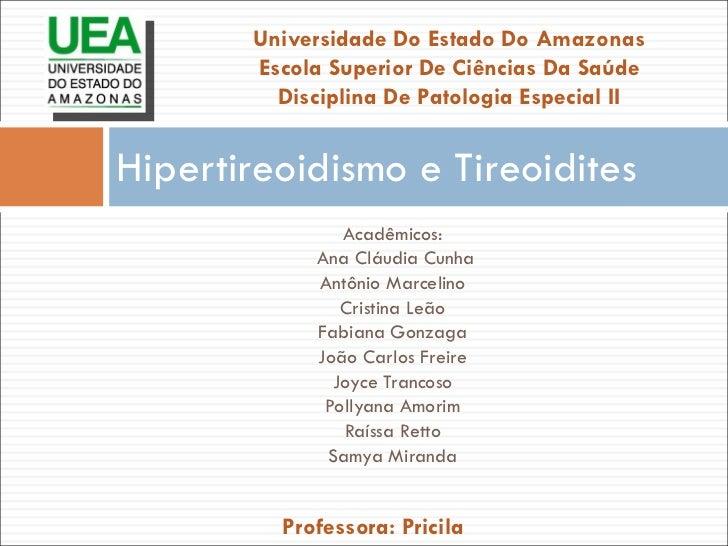 Hipertireoidismo e Tireoidites <ul><li>Acadêmicos: </li></ul><ul><li>Ana Cláudia Cunha </li></ul><ul><li>Antônio Marcelino...