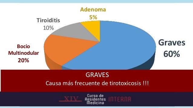 Etiología por edad  Enfermedad de Graves   • Tiroiditis    Bocio multinodular   • Adenoma