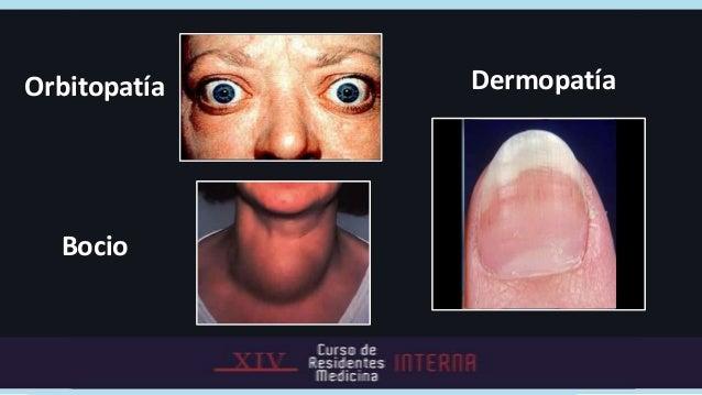 .              Dx    Diagnóstico             Graves