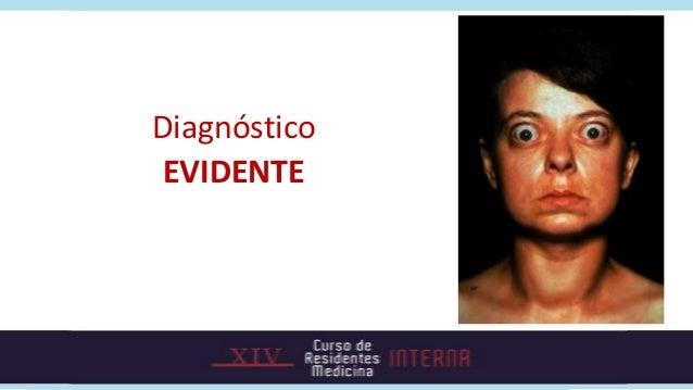 Diagnóstico EVIDENTE
