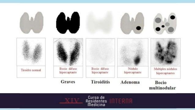 LaboratorioHemoleucogramaReactantes de fase agudaPerfil hepáticoCalcio, albúmina