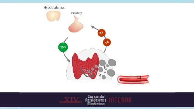Hipertiroidea•Enfermedad de Graves•Bocio multinodular•Adenoma tóxico•Hipertiroidismo central•Struma ovarii•CA tiroides met...