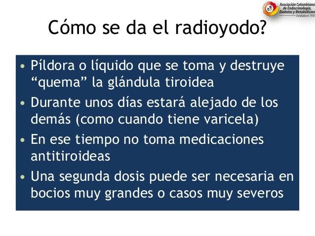 """Cómo se da el radioyodo? • Píldora o líquido que se toma y destruye """"quema"""" la glándula tiroidea • Durante unos días estar..."""