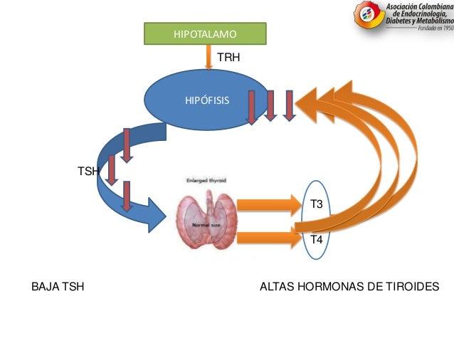 HIPÓFISIS TRH HIPOTALAMO TSH T3 T4 ALTAS HORMONAS DE TIROIDESBAJA TSH