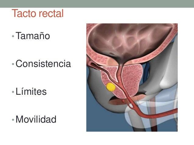 Prostata cancer