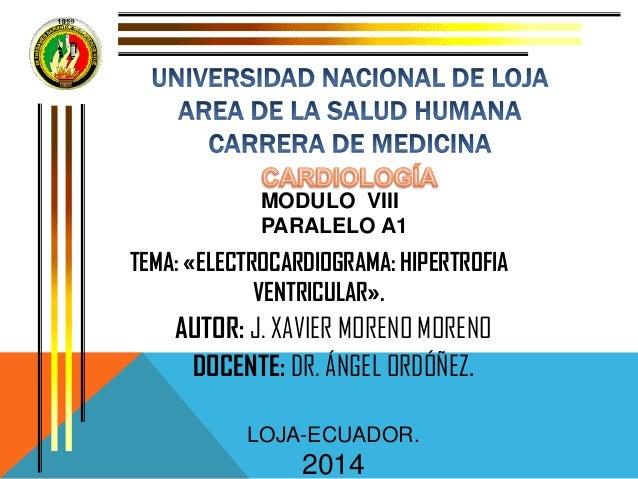 MODULO VIII PARALELO A1 TEMA: «ELECTROCARDIOGRAMA: HIPERTROFIA VENTRICULAR». AUTOR: J. XAVIER MORENO MORENO DOCENTE: DR. Á...