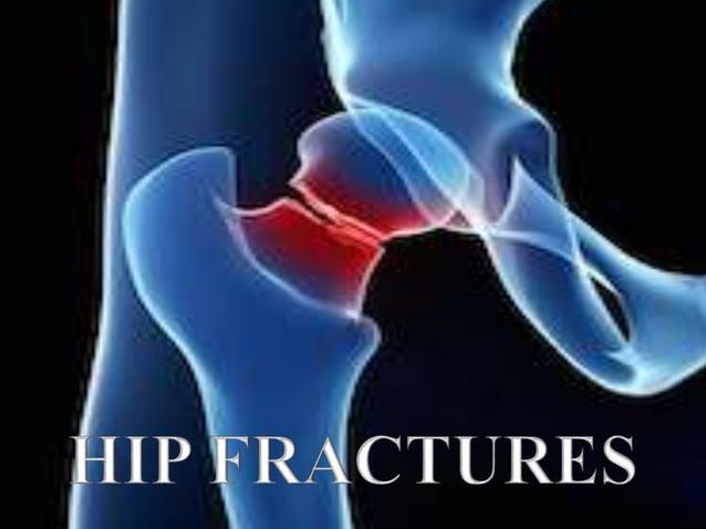 Dr. A.MOHAN KRISHNA M.S.ORTHO, MCh ORTH(U.K) Consultant Orthopaedic surgeon , Trauma, Arthroscopy, Arthroplasty Surgeon Ap...