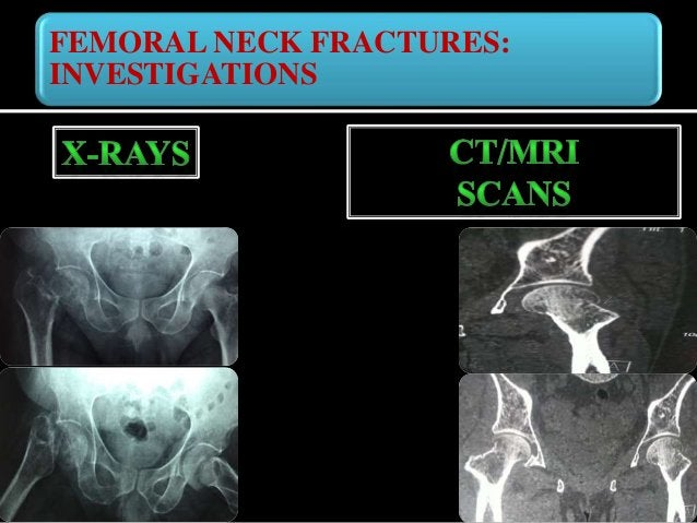 FEMORAL NECK FRACTURES: MANAGEMENT Diabetes/Hypertension Cardiac /Neurological conditions Kidney / liver problems Physicia...