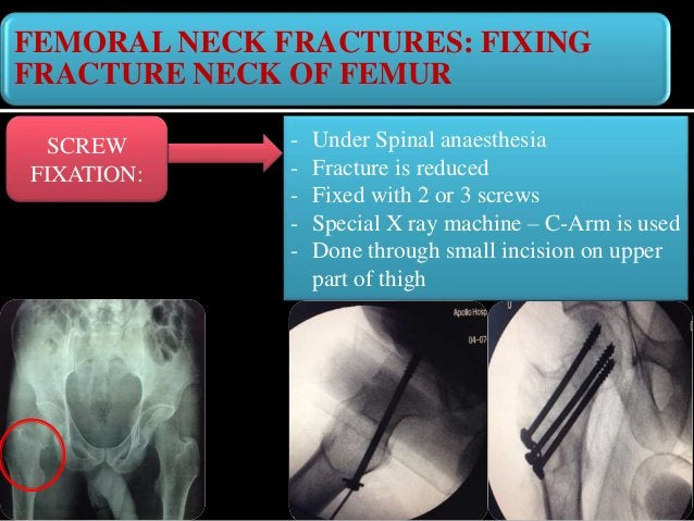 FIXING FRACTURE NECK OF FEMUR DYNAMIC HIP SCREW FIXATION (DHS) - Under Spinal anaesthesia - Fracture is reduced - Fixed wi...