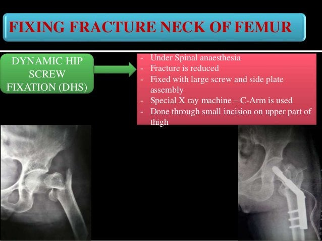FIXING FRACTURE NECK OF FEMUR DAY 1 in the hospital • Moving in and out of bed • Walking with the help of walker without w...