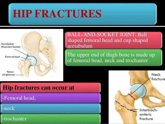 HIP FRACTURES: FEMORAL NECK FRACTURES Fracture adjacent to the femoral head in the neck between the head and the greater t...