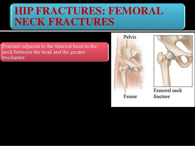 FEMORAL NECK FRACTURES: CAUSES Elderly : Common / weak osteoporotic bone Common cause in elderly : - Due to slip and fall ...