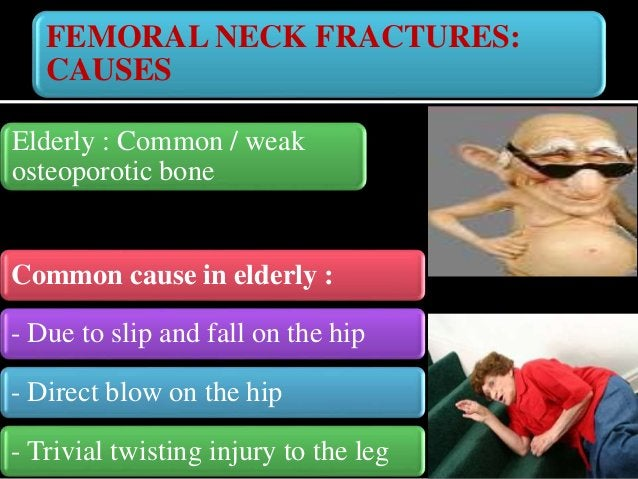 FEMORAL NECK FRACTURES: CAUSES Young : -High velocity road traffic accidents -Fall from heights