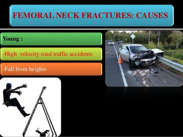 FEMORAL NECK FRACTURES: COMPLAINTS -Pain in the injured hip -Inability to bear weight - Inability to move the hip -Bruisin...