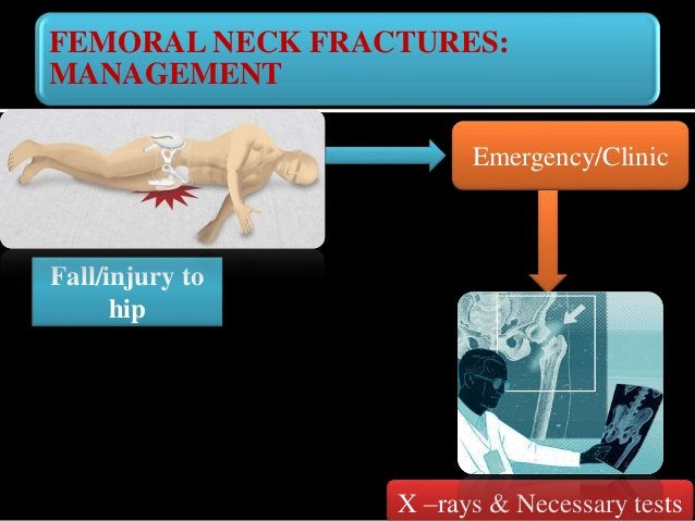 FEMORAL NECK FRACTURES: INVESTIGATIONS