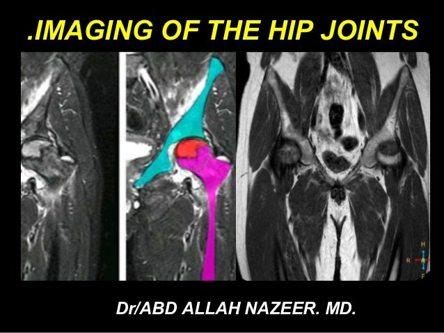 MRI OF THE HIP JOINTS. By .Dr/ABD ALLAH NAZEER. MD