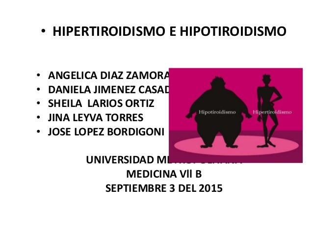 • HIPERTIROIDISMO E HIPOTIROIDISMO • ANGELICA DIAZ ZAMORA • DANIELA JIMENEZ CASADIEGO • SHEILA LARIOS ORTIZ • JINA LEYVA T...