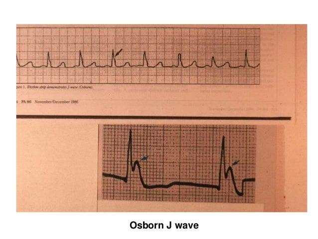 Osborn J wave